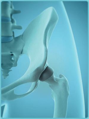 hip regenerative procedure