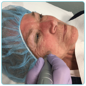 PRP and microneedling treatment for skin
